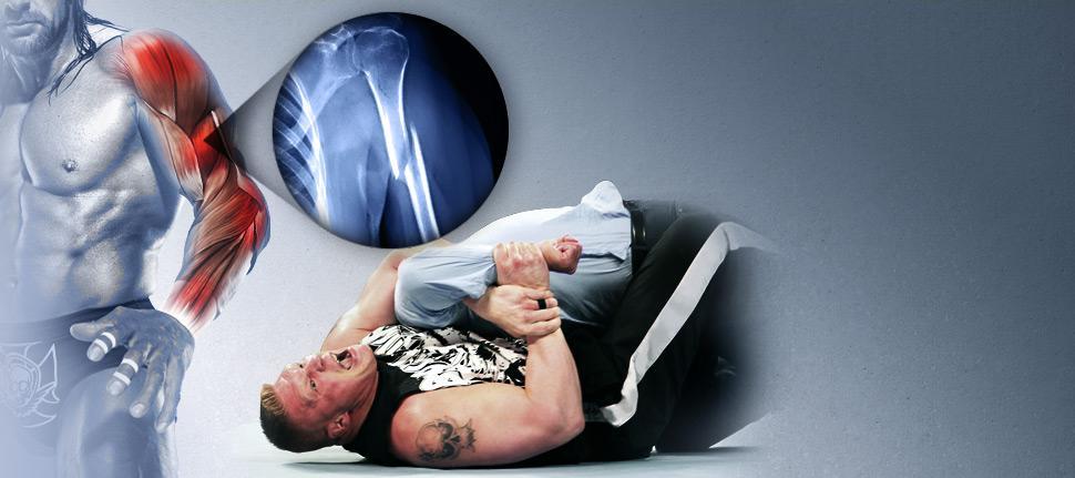 20120502 EP LARGE TripleH Injury Revision