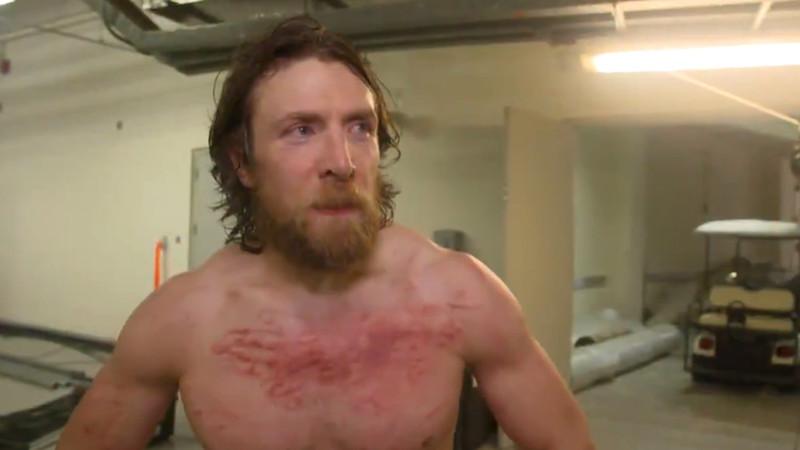 daniel bryan bruises